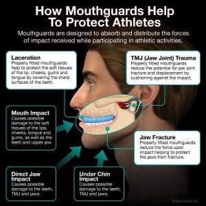 Dental trauma ; customised mouthguards