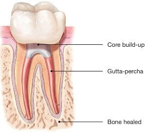 Saving Your Natural Tooth